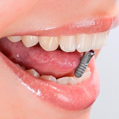 Implantologie Zahnarzt Zürich