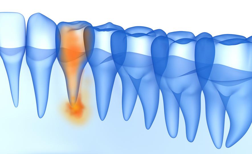 Zähne erhalten Zyste Wurzelspitzenresektion Wurzelfraktur