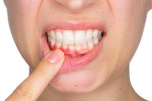 Zahnfleisch Fehlbildungen Probleme Zahnfleischkorrektur